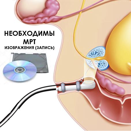 фьюжн-биопсия